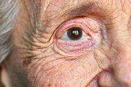 Rosário: DPE obtém na Justiça tratamento de idosa com problema grave de visão
